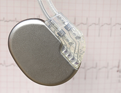 Electronic Implantables